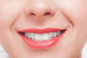 歯並び矯正02