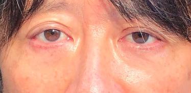 目の下のたるみ 美容液