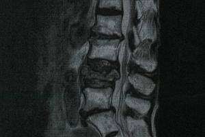 圧迫 骨折 腰椎